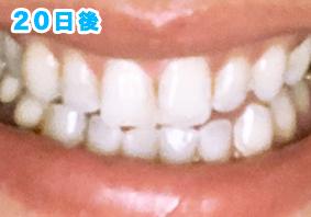 歯のホワイトニングビローアフター